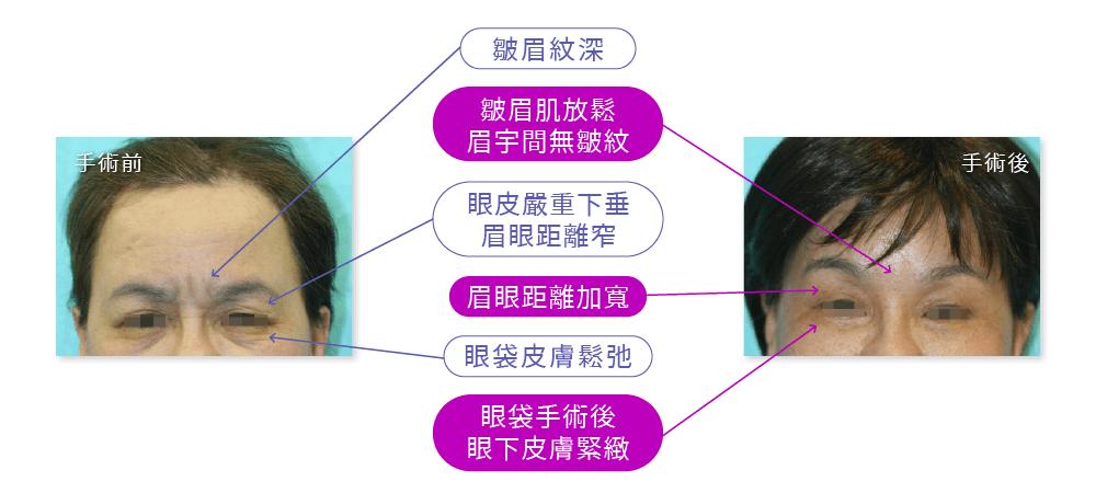 內視鏡拉皮手術案例:皺眉紋深、眼皮下垂、眼袋鬆弛