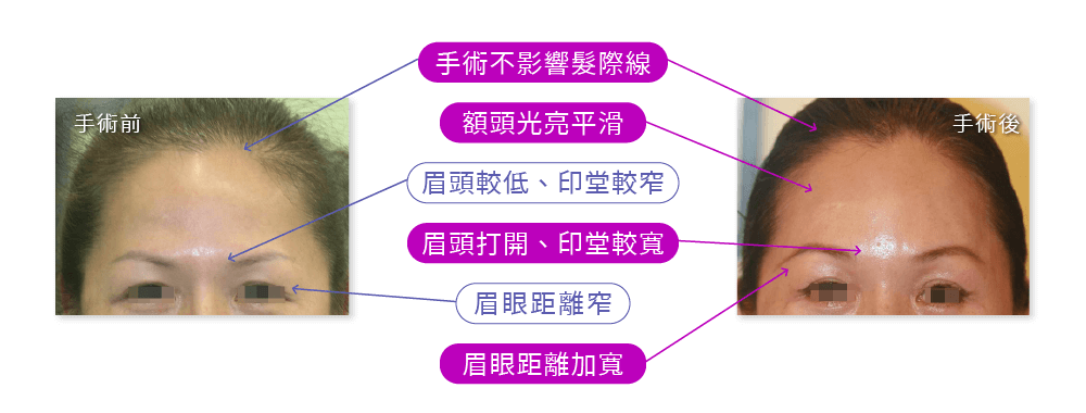 內視鏡拉皮手術案例:眉頭較低、印堂較窄、眉眼距離窄